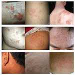 All Skin Infections & Treatments APK icon